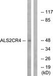 C14462-1 - ALS2CR4 / TMEM237