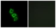 C14543-1 - Apolipoprotein L5 (Apo L5)