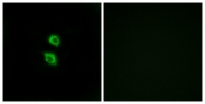C14566-1 - Arylsulfatase D