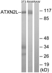 C14580-1 - Ataxin-2-like protein