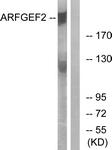 C14804-1 - ARFGEF2