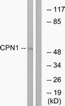 C14963-1 - Carboxypeptidase N catalytic chain