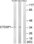C14968-1 - CTDSP1