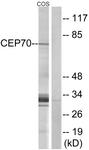 C15047-1 - CEP70