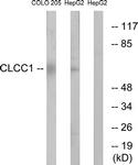 C15076-1 - CLCC1