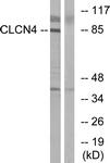 C15079-1 - CLCN4