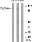 C15081-1 - CLCN6