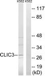 C15089-1 - CLIC3