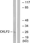 C15132-1 - CMTM2