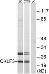 C15133-1 - CMTM3