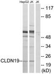C15153-1 - Claudin-19 / CLDN19