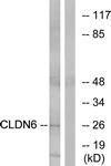 C15161-1 - Claudin-6 / CLDN6