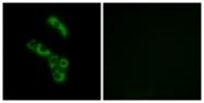 C15196-1 - C1q B subunit