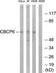 C15302-1 - AGBL4 / CCP6