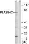 C15308-1 - PLA2G4C