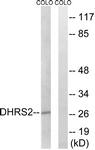 C15322-1 - DHRS2