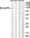 C15367-1 - DLGAP5 / DLG7