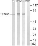 C15503-1 - TESK1