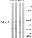 C15897-1 - POFUT1