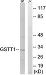C15930-1 - GSTT1