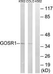C15941-1 - GOSR1 / GS28