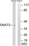 C16063-1 - GNAT2 / GNATC