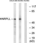 C16119-1 - hnRNP-L like / HNRPLL