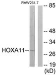 C16289-1 - HOXA11 / HOX1I