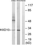 C16318-1 - HOXD10