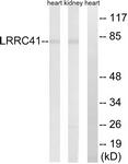 C16455-1 - LRRC41