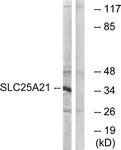 C16666-1 - SLC25A21 / ODC