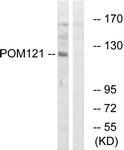C17074-1 - POM121