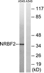 C17124-1 - NRBF2