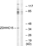 C17595-1 - ZDHHC15