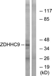 C17600-1 - ZDHHC9
