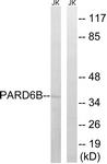 C17606-1 - PARD6B