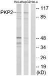 C17732-1 - Plakophilin-2
