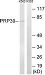 C17848-1 - PRPF39
