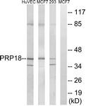 C17852-1 - PRPF18