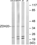C17951-1 - ZDHHC20