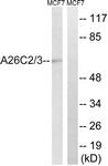 C17979-1 - ACTBL1