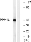 C18028-1 - Protein phosphatase 1L / PPM1L