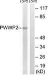 C18097-1 - PWWP2B