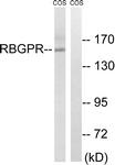 C18125-1 - RAB3GAP2