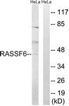 C18183-1 - RASSF6