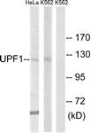 C18329-1 - UPF1 / RENT1