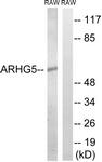 C18395-1 - ARHGEF5 / TIM