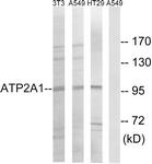C18472-1 - ATP2A1 / SERCA1