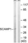 C18492-1 - SCAMP1
