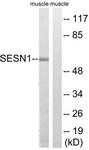 C18691-1 - Sestrin-1 (SESN1)